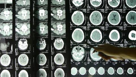 Doctors study skull brain X-ray film for analysis Stock Video Footage