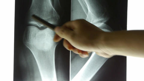 doctors study arm,leg joints X-ray film for analysis Stock Video Footage