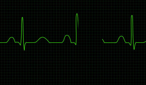Electrocardiogram screen CG動画素材