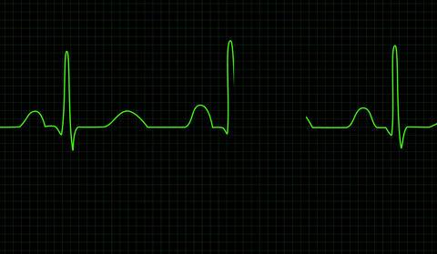 Electrocardiogram screen Animation
