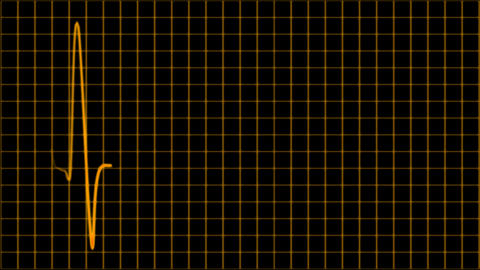 Cardiogram cardiograph oscilloscope screen loop 4k Footage