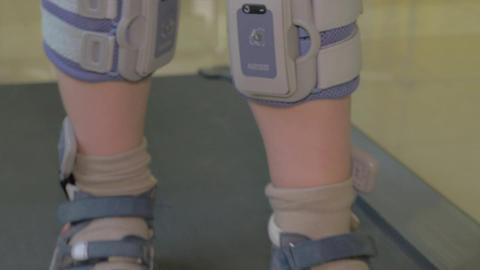 Close up view of boy feet on treadmill in the special orthopedic bandage and foo Footage