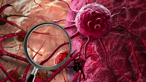 Concept of Cancer Cell in human body Animation