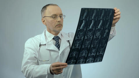 Serious physician checking injured spine scanning image, looking at camera Footage