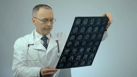 Unhappy doctor looking at MRI brain scan, upset about patient's health condition Footage