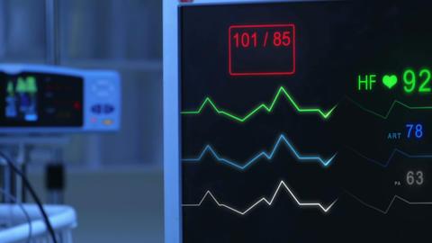 E.C.G (Pulse checking) Monitor