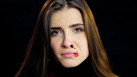 Beautiful woman bleeding from nose after domestic violence crying looking camera Live Action
