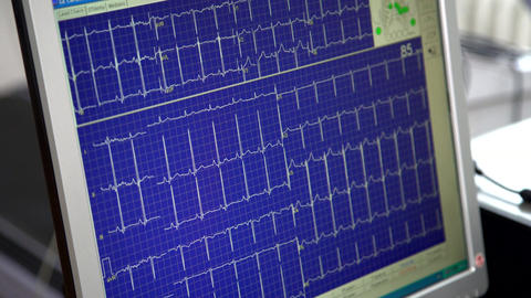 005ECG monitor screen Filmmaterial