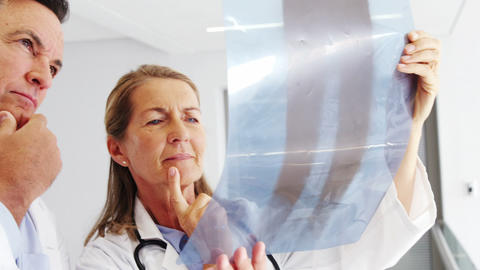 Doctors checking x-ray report Footage