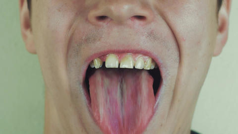 Young man sing song pronounce words in front camera.Show tongue. White teeth Footage