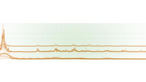 4k stock market trend analysis statistics data,heartbeat pulse ECG grid lines Live Action