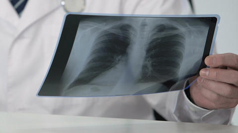 Oncology expert holding healthy patient's lung scan, making favorable diagnosis Footage