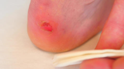 Hand drying and cleaning cracked bloody blister on heel with paper tissue. A pai Footage