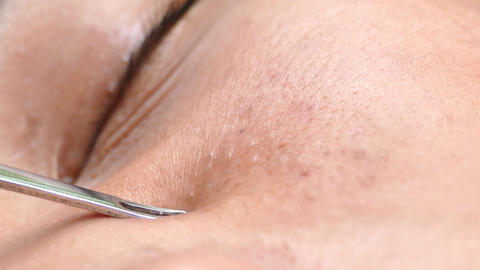 Squeezing pimple with comedone extractor tool Image