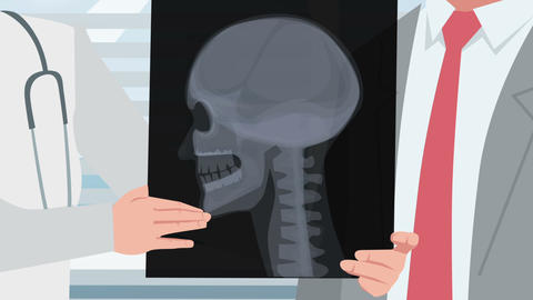 Cartoon Clinic / Xray Of The Patient Head stock footage