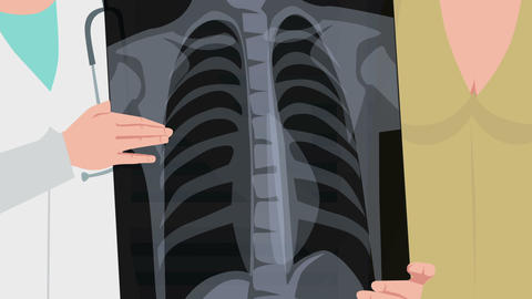 Cartoon Clinic / Xray of the patients chest Animation