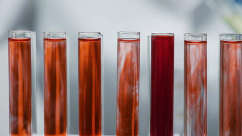 Lab assistant working with test tubes, examining blood samples in laboratory Footage