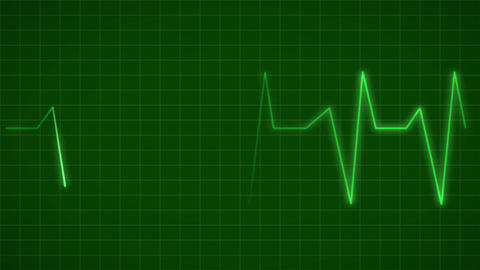 ECG Electrocardiogram Display Heart Rate Beat Pulse Looped animated background Image