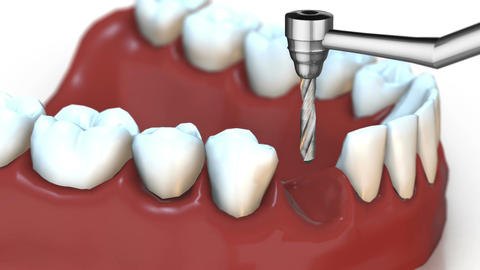 3D animation the installation process of dental implants Animation
