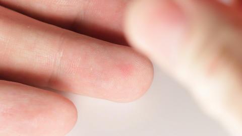 Prick finger Stock Video Footage