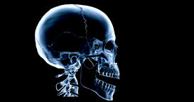 An animated X Ray of a human skull talking, multicoloured version 画像
