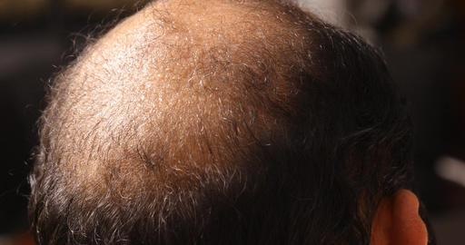 Bald head man Live Action