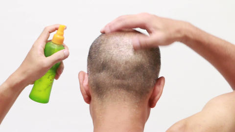 bald man using hair restorer Footage