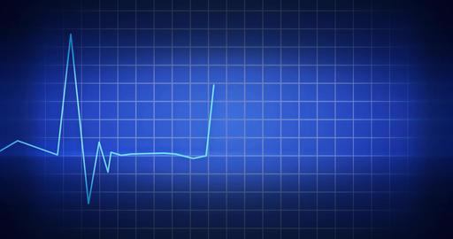 EKG Heartbeat Monitor CG動画素材