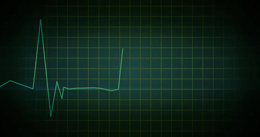 EKG Heartbeat Monitor Green Animación