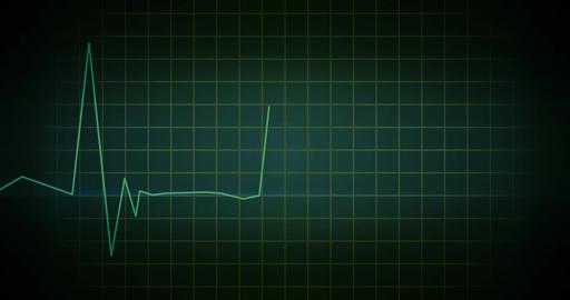 EKG Heartbeat Monitor Green Animación