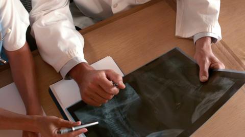 Doctors examining Xray scan Footage