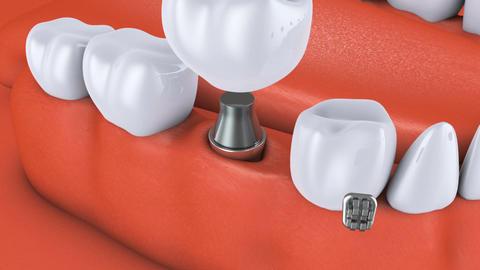 Animation dental brackets4 Archivo
