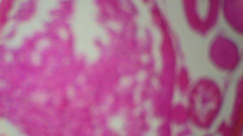 Ascaris under the microscope, background (Ascaris... Stock Video Footage