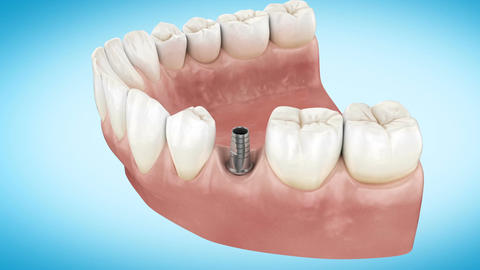 Beautiful Tooth implant installation process. Close Up 3d Animation. Full HD Animation
