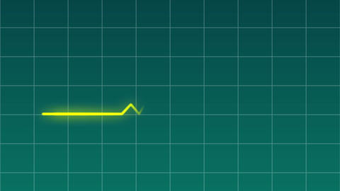 ECG Monitor Heart Rate CG Medical Green 動画素材, ムービー映像素材