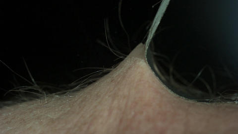 Peeling Black Tape Off a Hairy Arm Stock Video Footage
