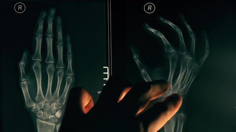 Doctor explaining x-ray image of a hand to a patient Footage