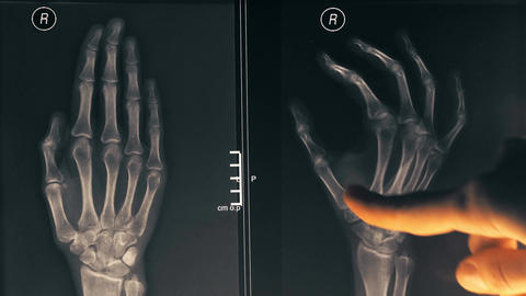 Female doctor demonstrating x-ray image of a hand to a patient Footage