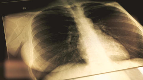 Doctor explaining x-ray image of a chest to a patient Footage
