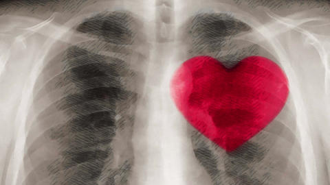 Cartoon x-ray of chest and beating heart. (loop ready file) Animation