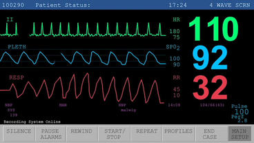 Heart Rate Monitor After Effects Template