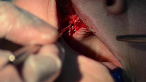 Dentist applying a dressing with antibiotic after making a jaw implant surgery 5 Footage