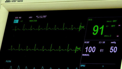 Patient Monitor Stock Video Footage