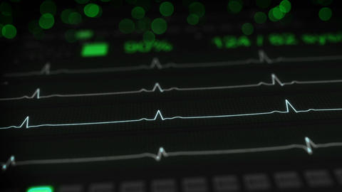 ECG test on monitor seamless loop animation with DOF Animation