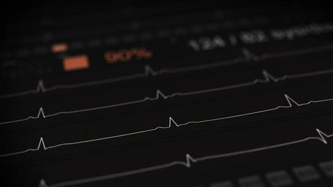 ECG waves on medical monitor loop animation with DOF Animation