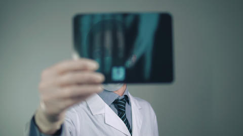 a young doctor examines an x-ray Footage
