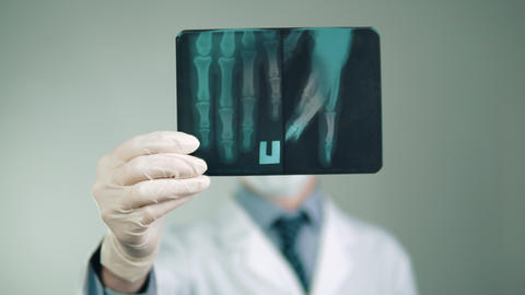 medical technology, the doctor makes a diagnosis, examines an X-ray of the Image