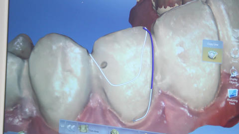 3D dental restoration process Footage