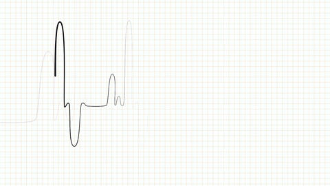 Looping pulse monitor on white Live Action