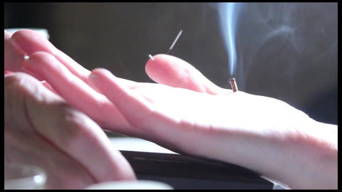 Su Jok Acupuncture medicine: Moxa fuming and needles on a hand Footage
